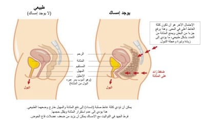 Constipation And Bowel Control In Arabic Continence Foundation Of Australia