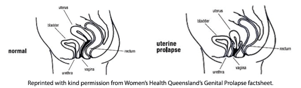 Prolapse Diagram